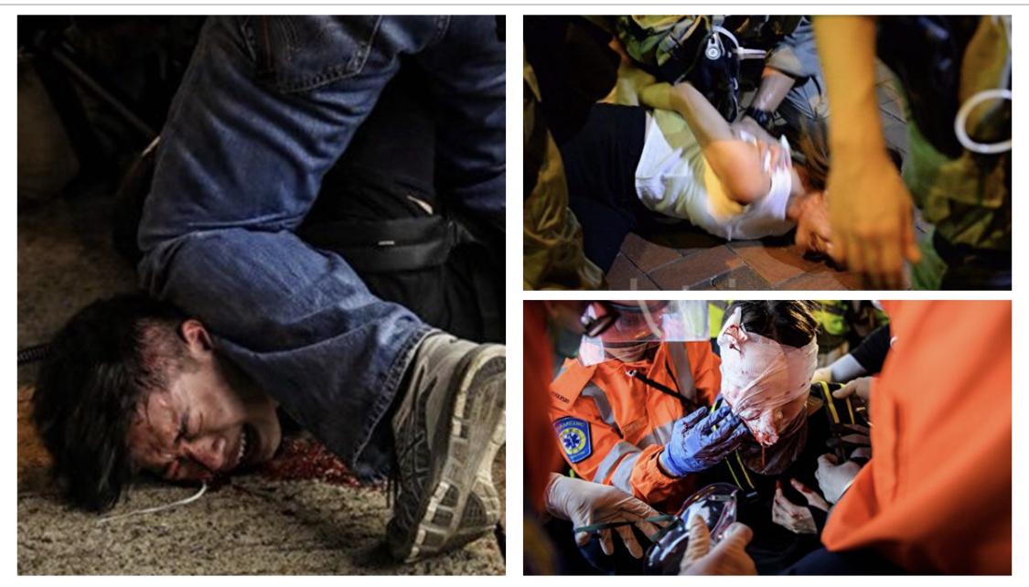曝示威者密押港深邊境 30人手腳骨折送返香港治療